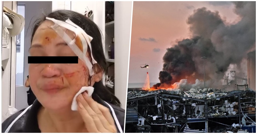 [Video] Pinay OFW Shares Her Experiences, Bares Wounds Sustained from Beirut Blast